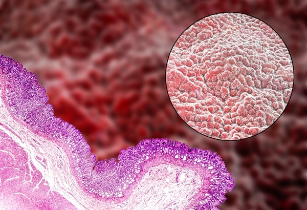 Preventing HIV-Associated Bacterial Translocation