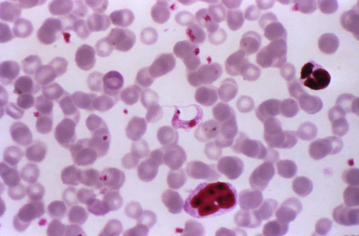 Chagas disease can result in cardiovascular morbidity and mortality if left untreated. <i>Photo Credit: CDC/ Dr Mae Melvin.</i>