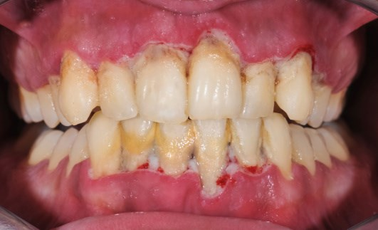 Periodontal Disease and Rheumatoid Arthritis: What Are the Links?