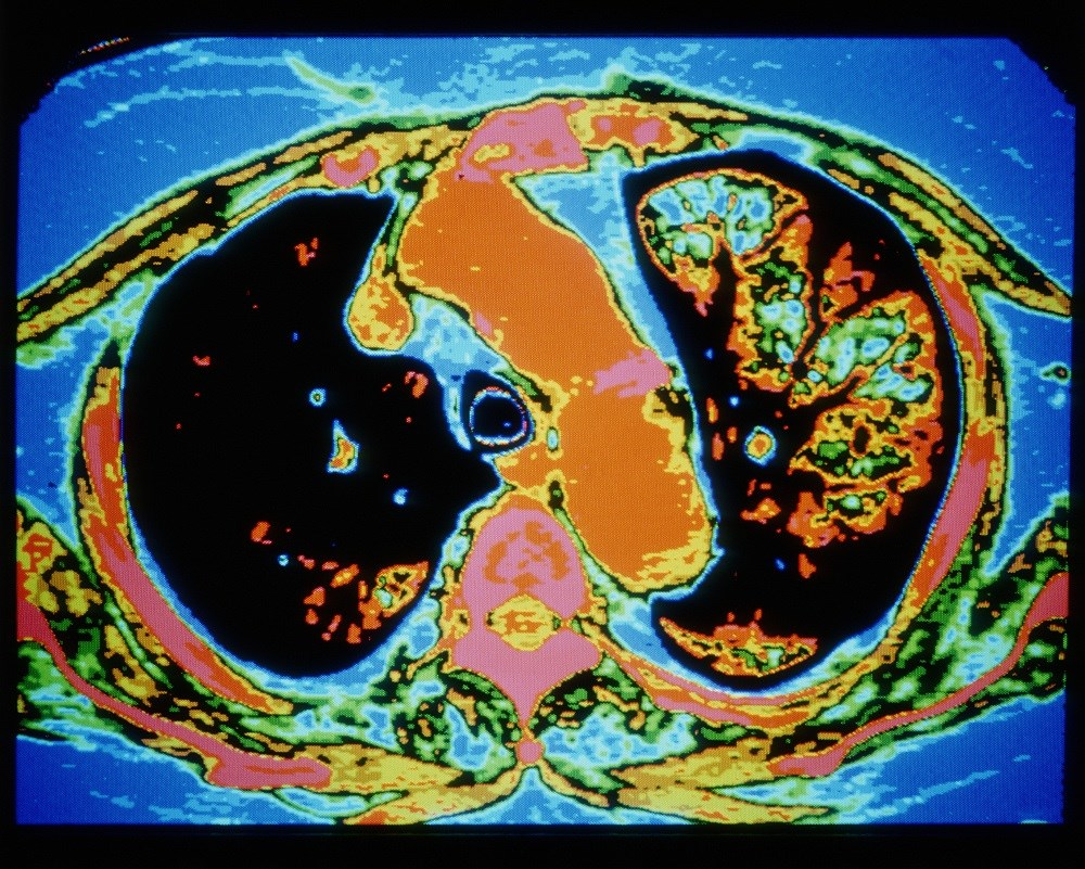 The strongest association between treatment with ACE inhibitors and ARBs, and a reduction in percent emphysema on chest CT was found among former smokers. <i>Photo Credit: GCa/Science Source.</i>