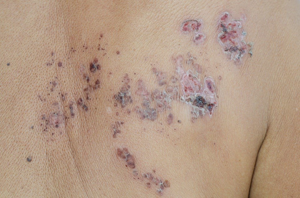 Dermatologists Should Be Aware of Herpes Zoster Risk Factors