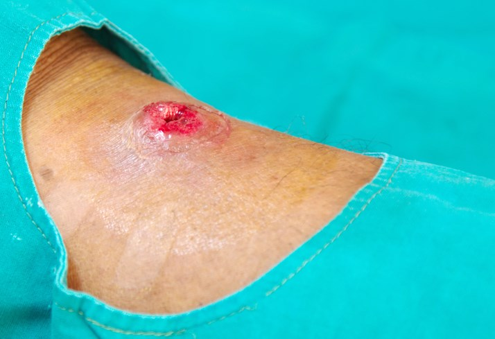Short-Term Outcomes in Small Skin Abscesses Improve With Antibiotics