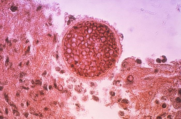 CDC: Greater Awareness of Valley Fever Needed Nationally