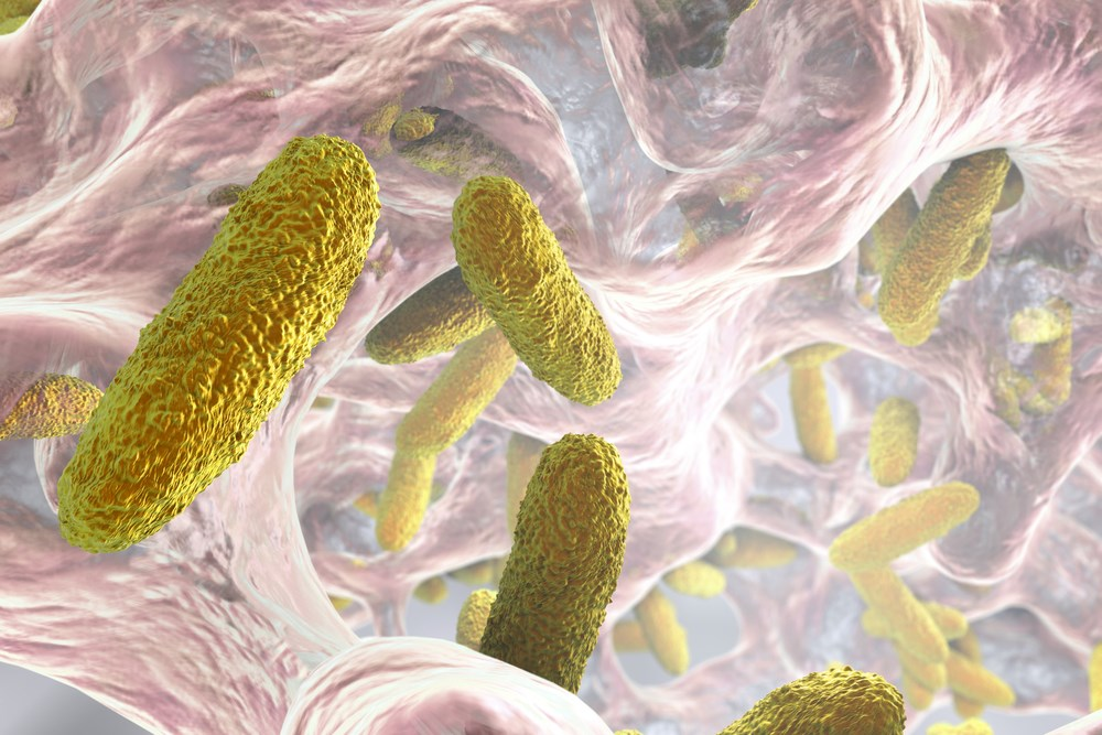 An estimated 55% to 85% of hospital-acquired pneumonia infections involve gram-negative bacteria, while 20% to 30% of cases involve gram-positive cocci.