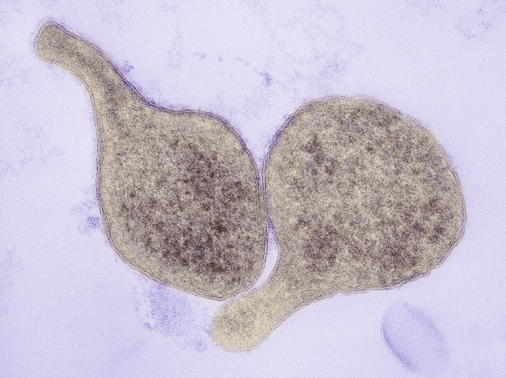 <i>M genitalium</i> is the most common cause of STIs, ranking only second to C trachomatis in prevalence. <i>Photo Credit: Thomas Deerinck, NCMIR/Science Source.</i>