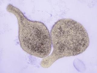 mycobacterium and mycoplasma