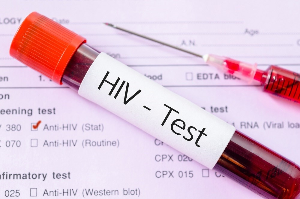 First-Time HIV Testing Low Among Men Who Have Sex With Men