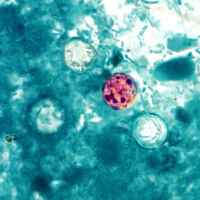 CDC Issues Advisory on the Rise of Cyclosporiasis