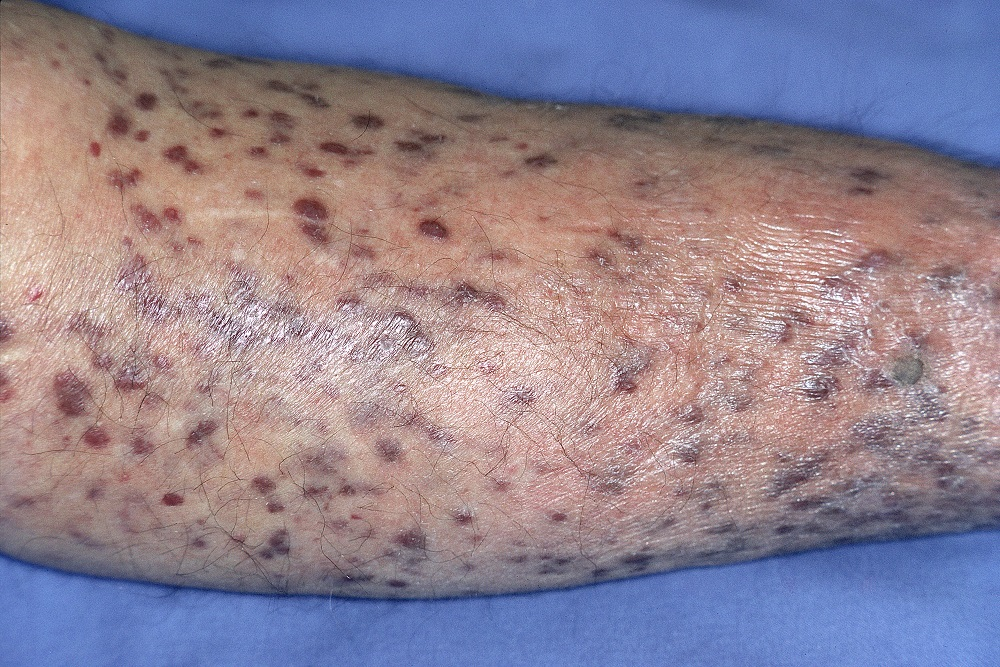 risk for secondary tumors after kaposi sar a has changed