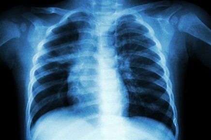 Whole Genome Sequencing Use in Predicting TB Resistance