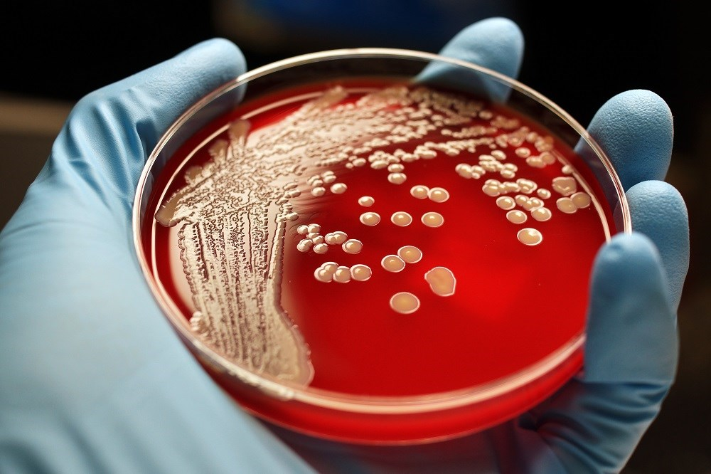Environmental Screening Effective Proxy for Evaluating MRSA and VRE Rate in Nursing Facilities