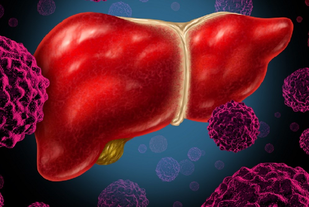 Hepatitis C Transmission With Increased Risk Donor Organs Examined