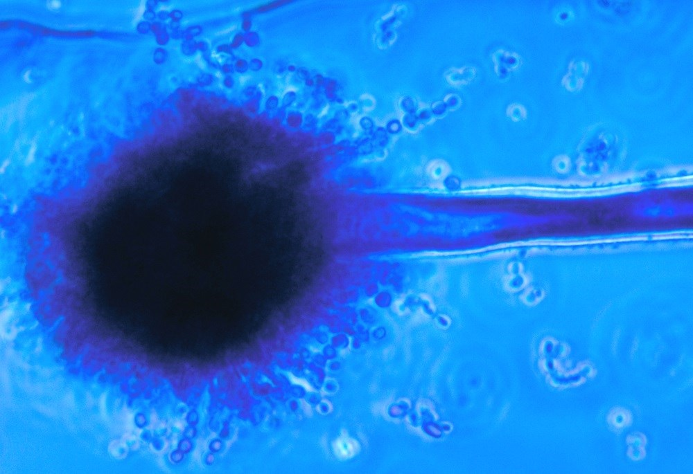 <i>Aspergillus flavus</i> is the second most frequent species causing invasive aspergillosis and is the leading cause of acute invasive fungal sinusitis. <i>Photo Credit: CDC/Dr Libero Ajello.</i>