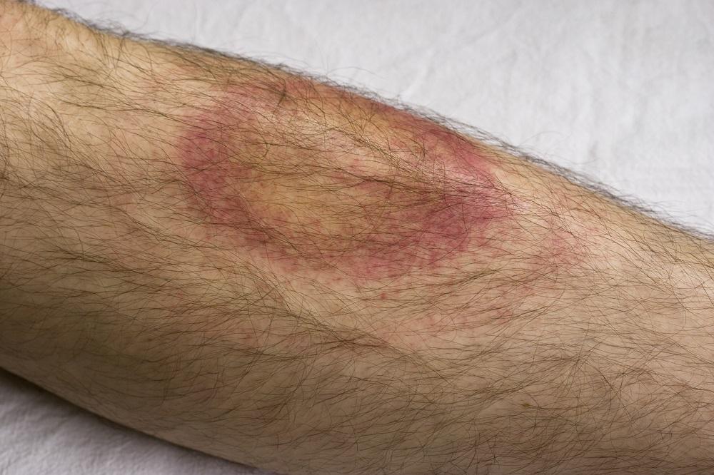 Sexually transmitted diseases lyme disease