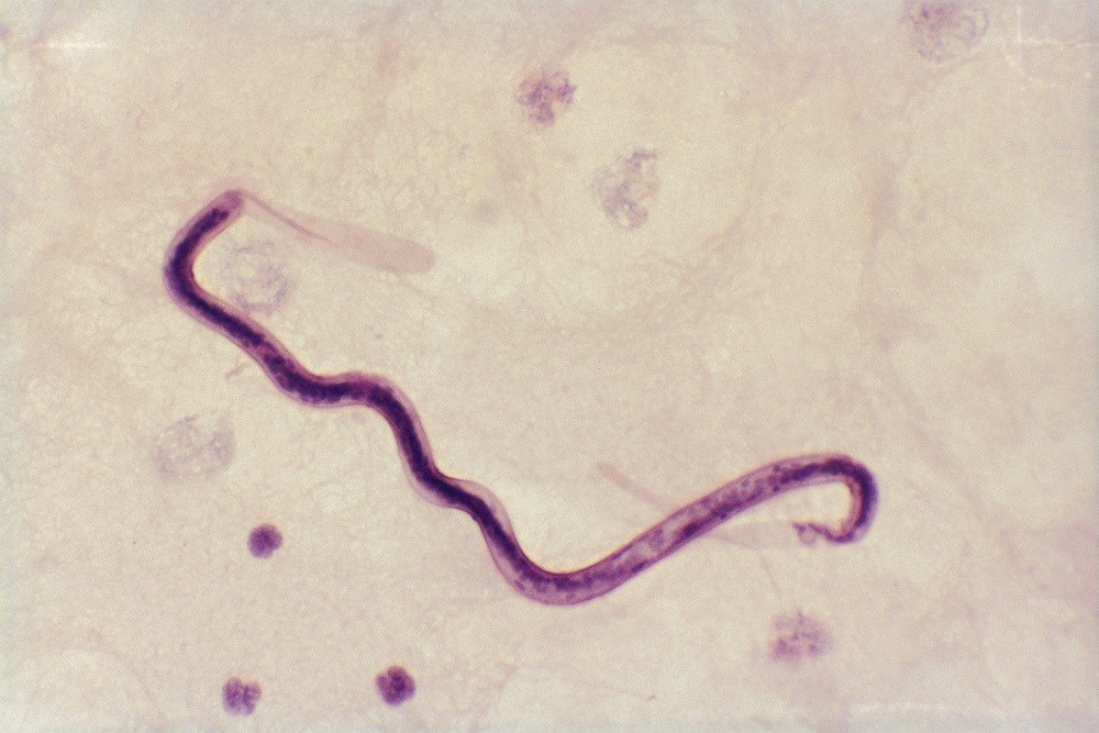 Rapid, Point-of-Care Tool for Identifying Onchocerciasis in L loa-Endemic Areas