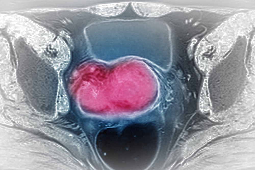 How HIV Affects Cervical Cancer Risk and Outcomes
