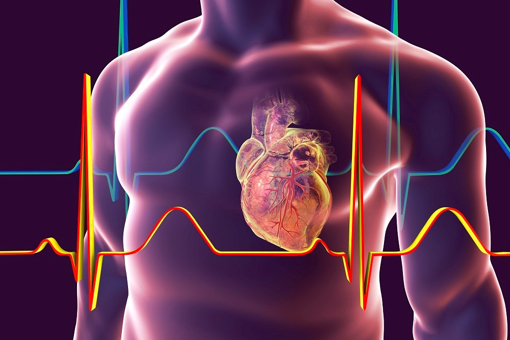 Abacavir Linked to Increased Risk for Cardiovascular Disease in PLWHIV