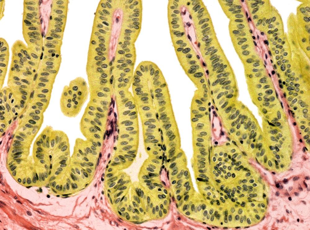 H pylori sexually transmitted
