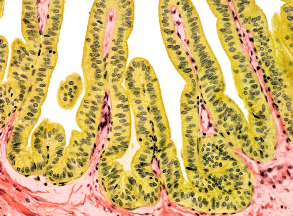 Helicobacter pylori Infection Linked to Gallbladder Diseases