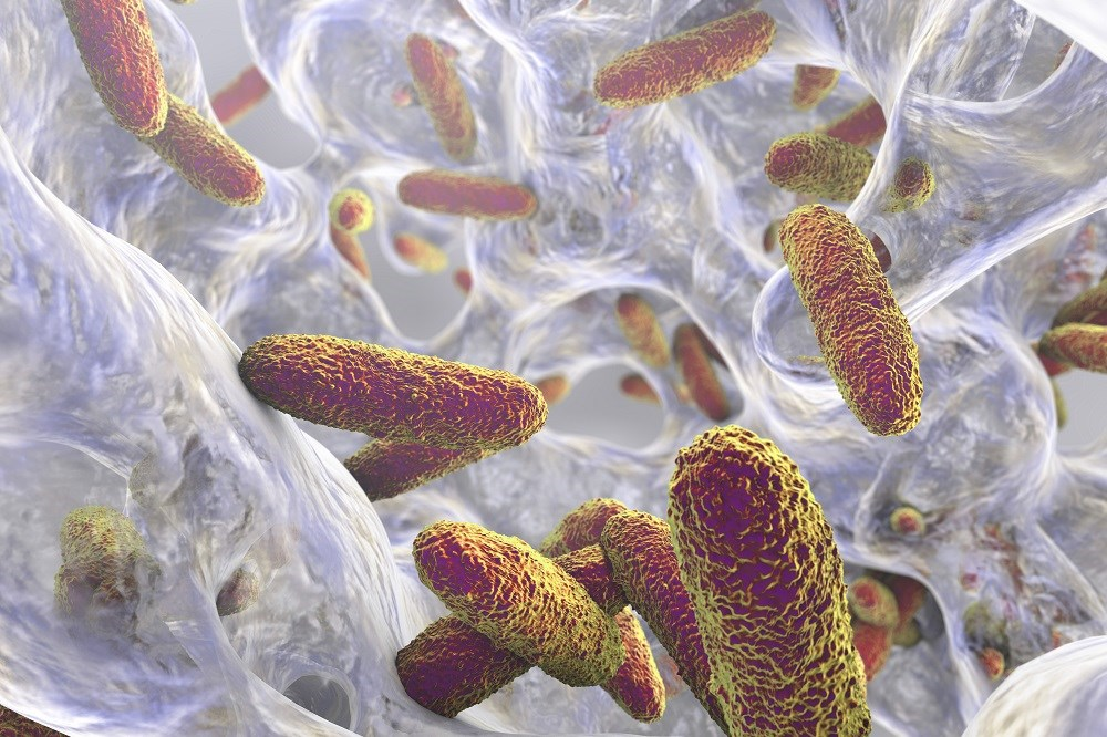 Klebsiella pneumoniae With PKS Gene Cluster Increases 30-Day Mortality