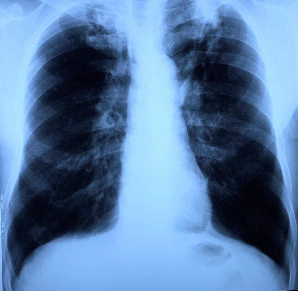Decreased Tuberculosis Risk With Metformin vs Sulfonylureas