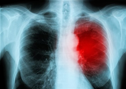 Case Study: Persistent Upper Respiratory Infection in a 44-Year-Old Man