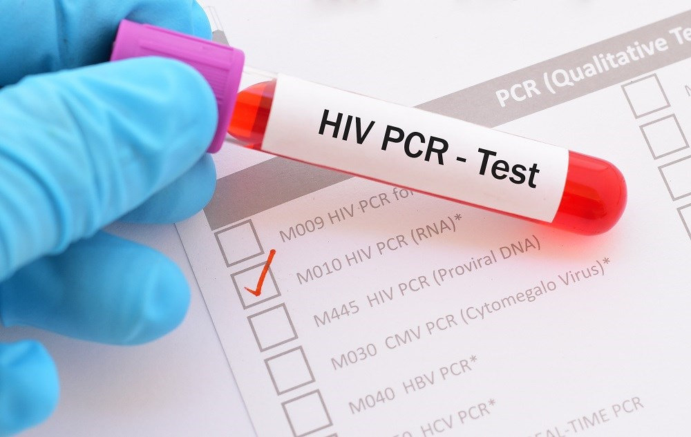 Many Americans Untested for HIV