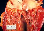 How Many Chances Are Too Many? Treating Recurrent Infective Endocarditis in IV Drug Users
