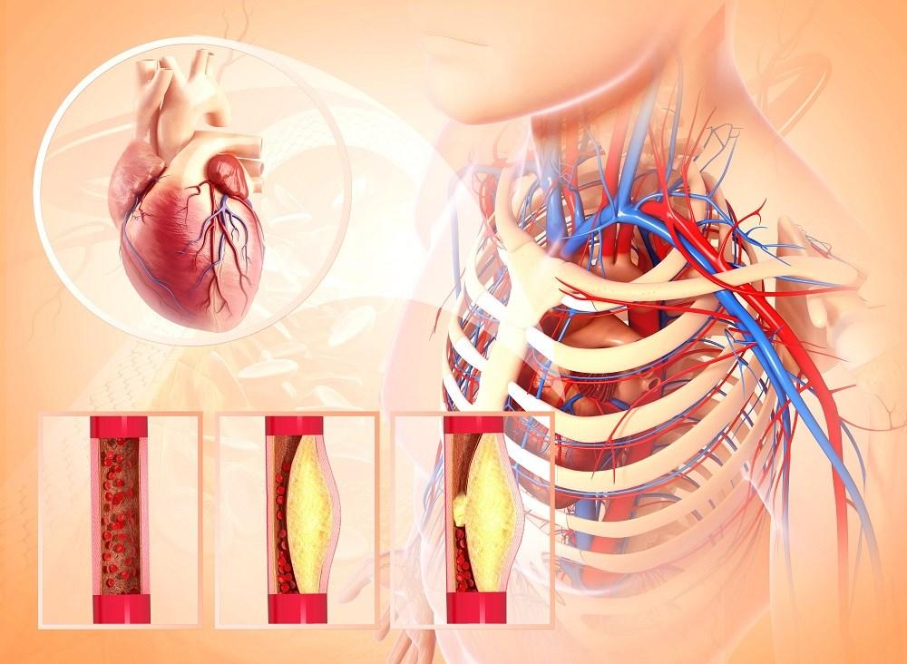 Hepatitis C Eradication With DAAs Improves Carotid Atherosclerosis