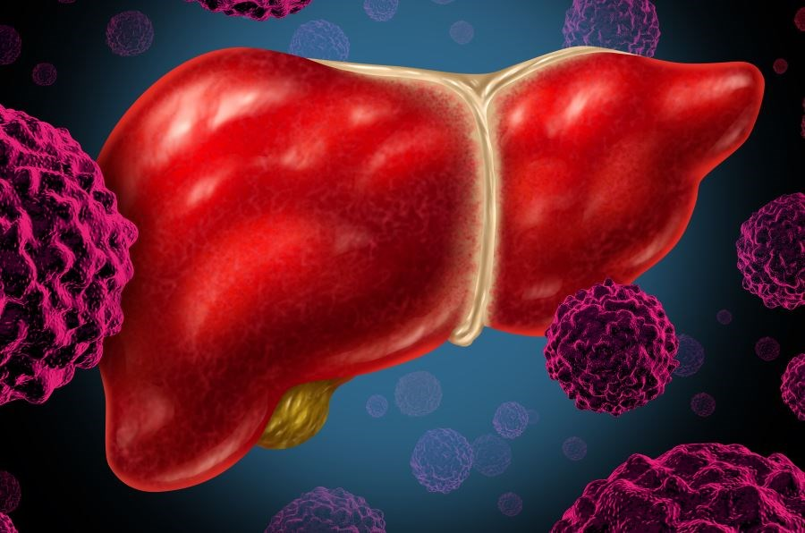 Treatment with Hepatitis C Antivirals Improves Outcomes Following Liver Transplantation