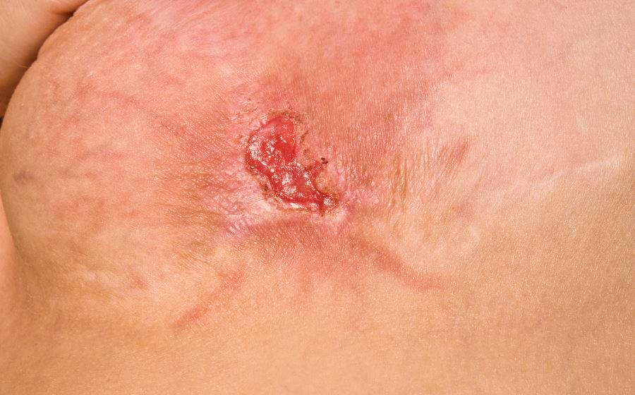 Adjunctive Antibiotic Therapy Yields Modest Benefit in Uncomplicated Skin Abscesses