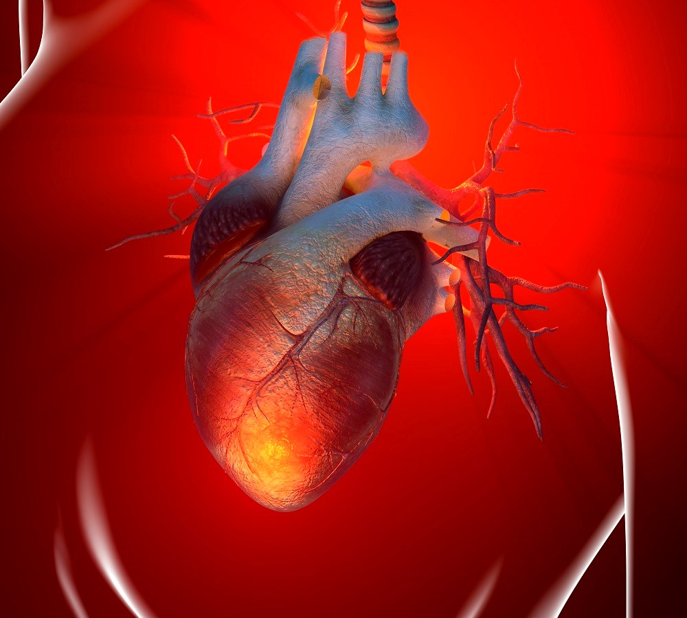 Pneumonia: Inflammation Linked to Cardiovascular Complications