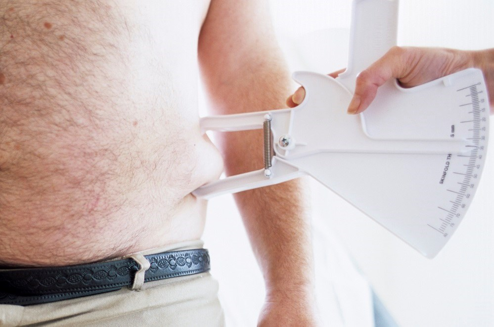 Increased Risk for Abdominal Obesity Found in People Living With HIV