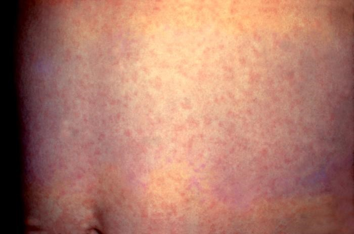 Measles in Childhood Affects Airflow Obstruction in Midlife