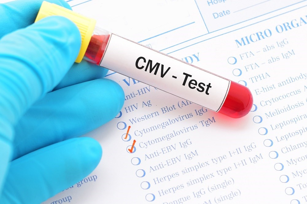 Worse Cognitive Outcomes Associated With CMV Antibodies Following ART for HIV