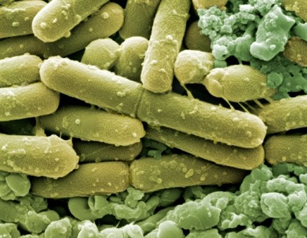 Clostridium difficile Infection in the Intensive Care Setting