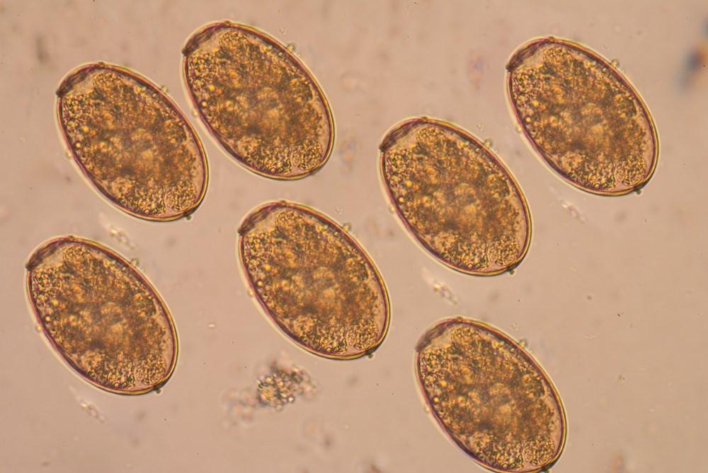 Helmintex Egg Isolation Method Highly Sensitive for Diagnosing Schistosomiasis