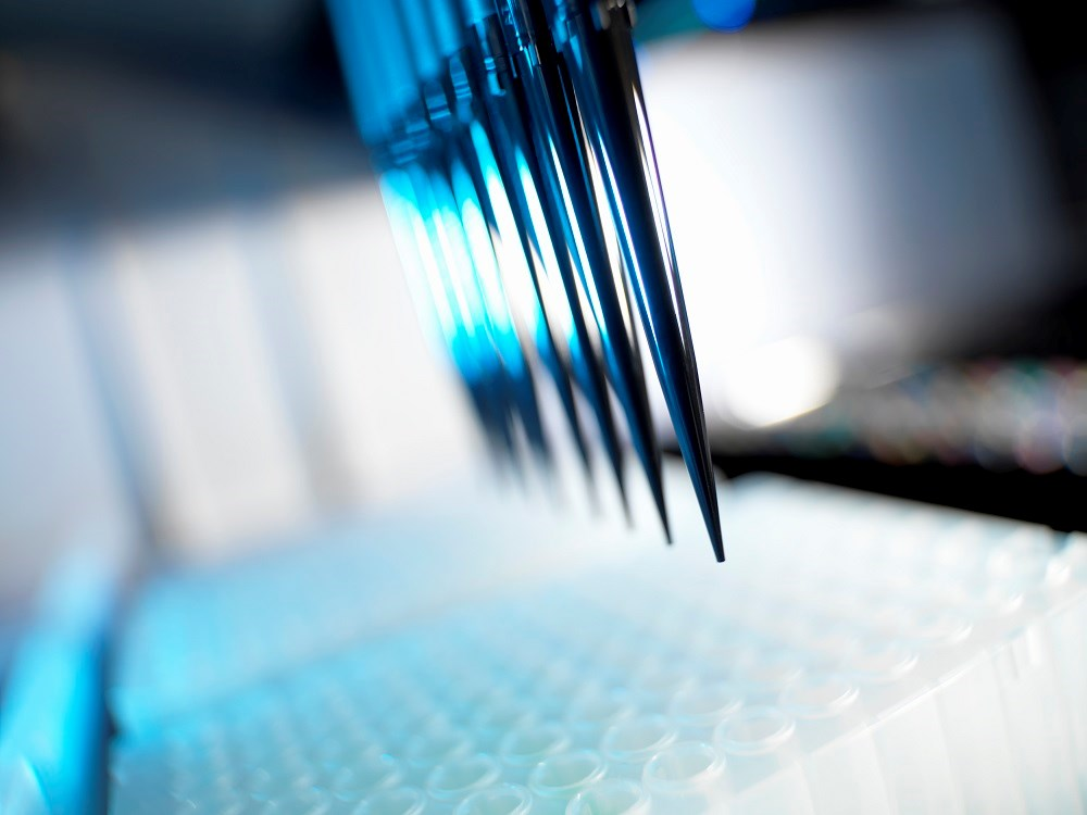 Novel Digital ELISA May Detect, Quantify Low HIV p24 Concentrations in CSF