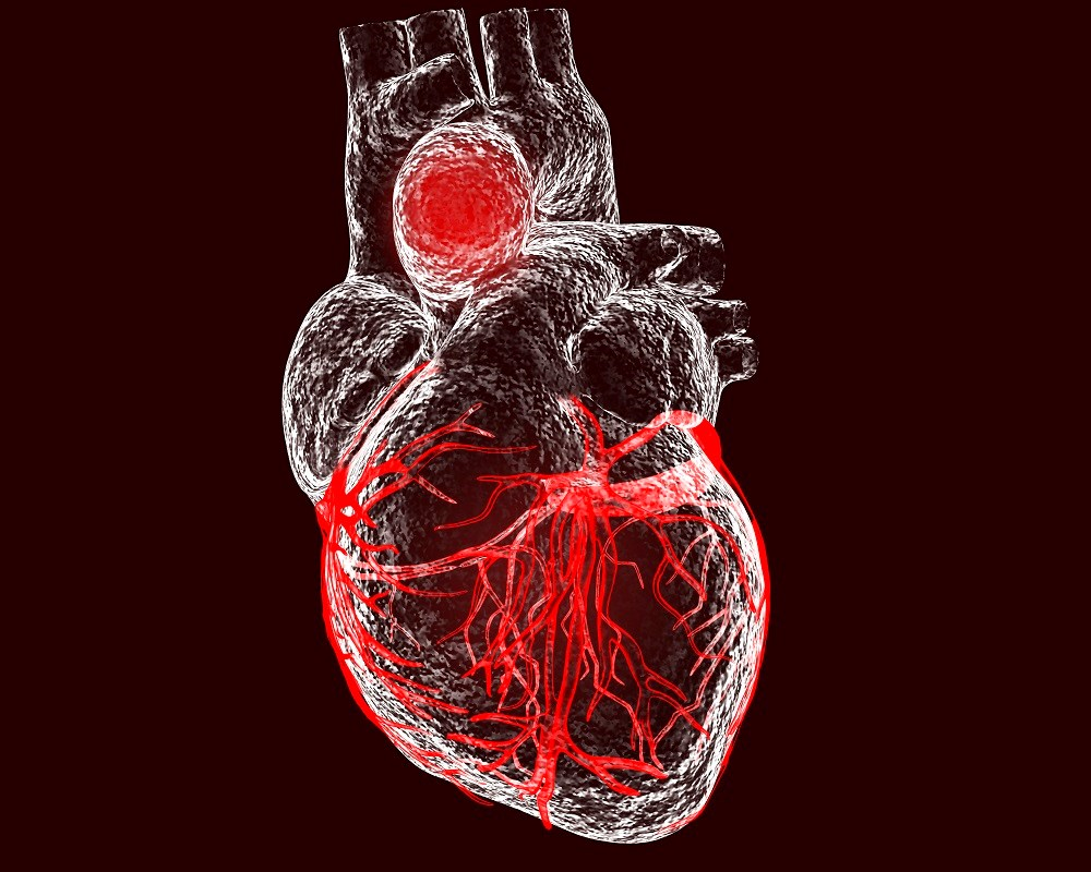 There was a 66% increased rate of aortic aneurysm or dissection associated with oral fluoroquinolone use.