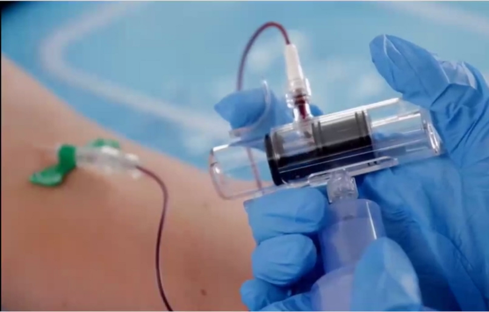 Steripath is a pre-assembled, sterile blood culture system designed to divert and sequester the initial 1.5 to 2.0 mL of blood prior to culture bottle inoculation.<i>Credit: Magnolia Medical Tech.</i>