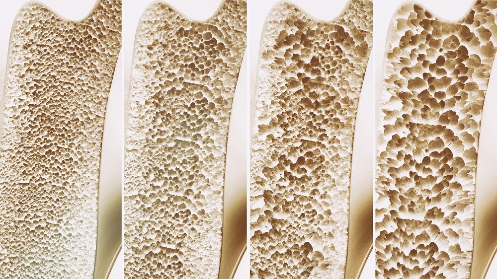 Denosumab inhibits osteoclast formation and activity in cortical bone, and this mechanism of action may be reflected by the reduction of erosion in both depth and surface.