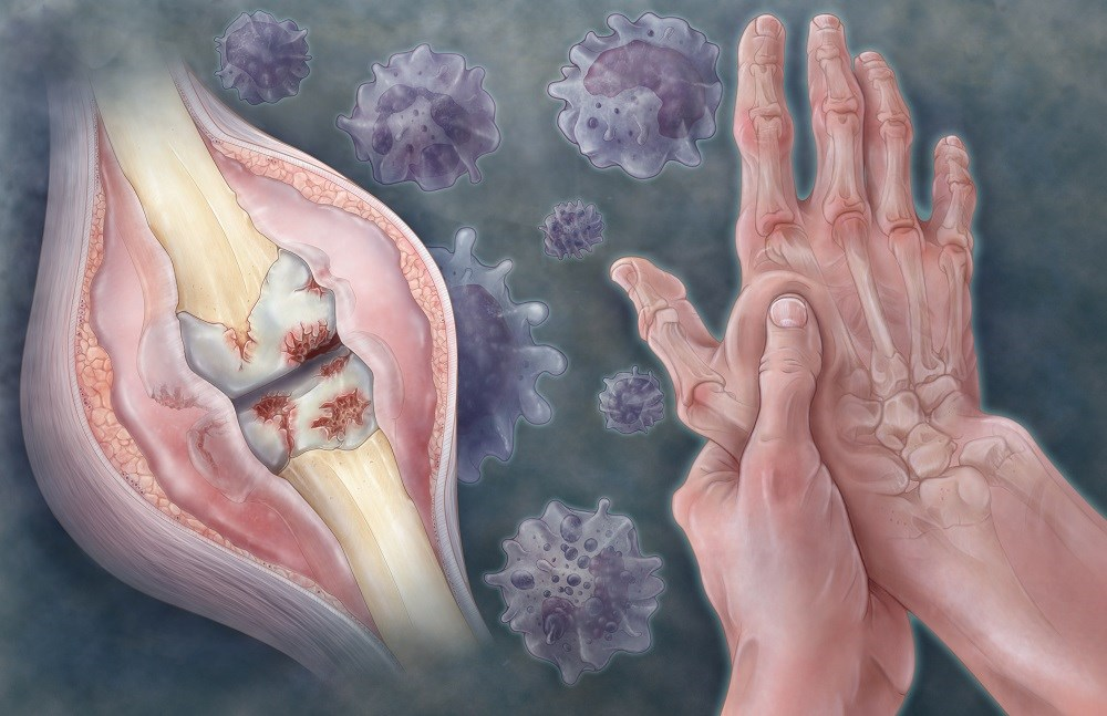 Patients With Rheumatic Diseases Need to Be Monitored for HBV Reactivation