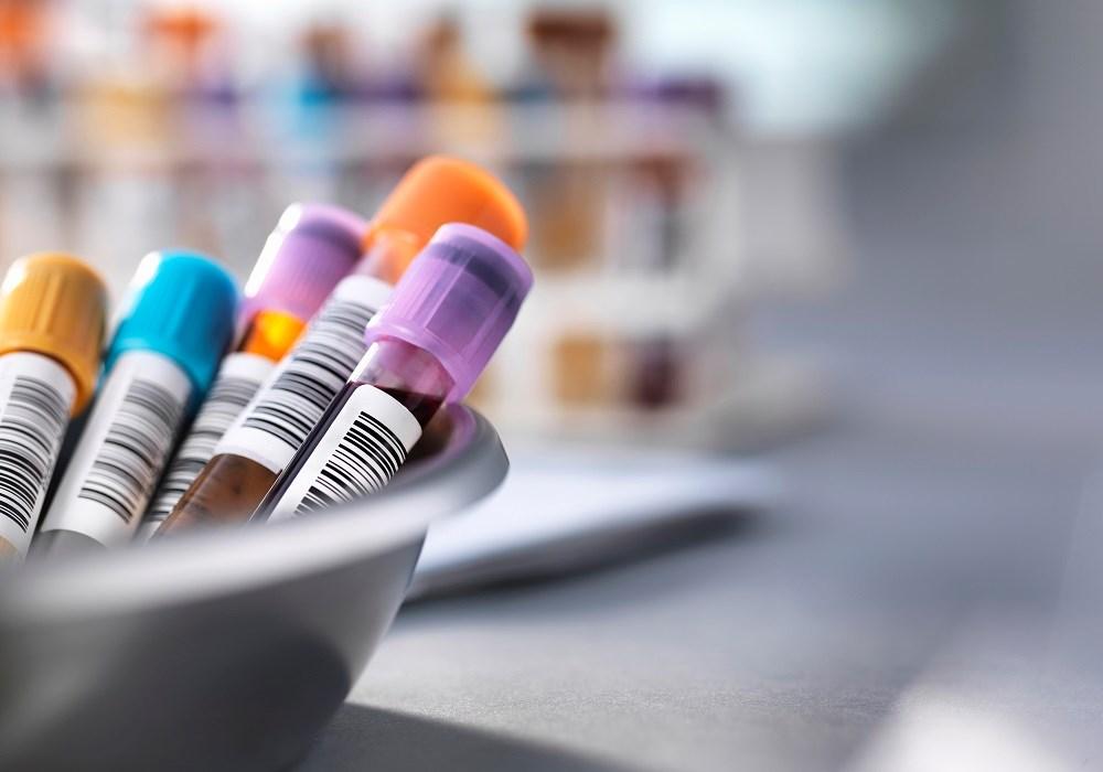 Specific Antigen Combination May Predict HBeAg Seroconversion