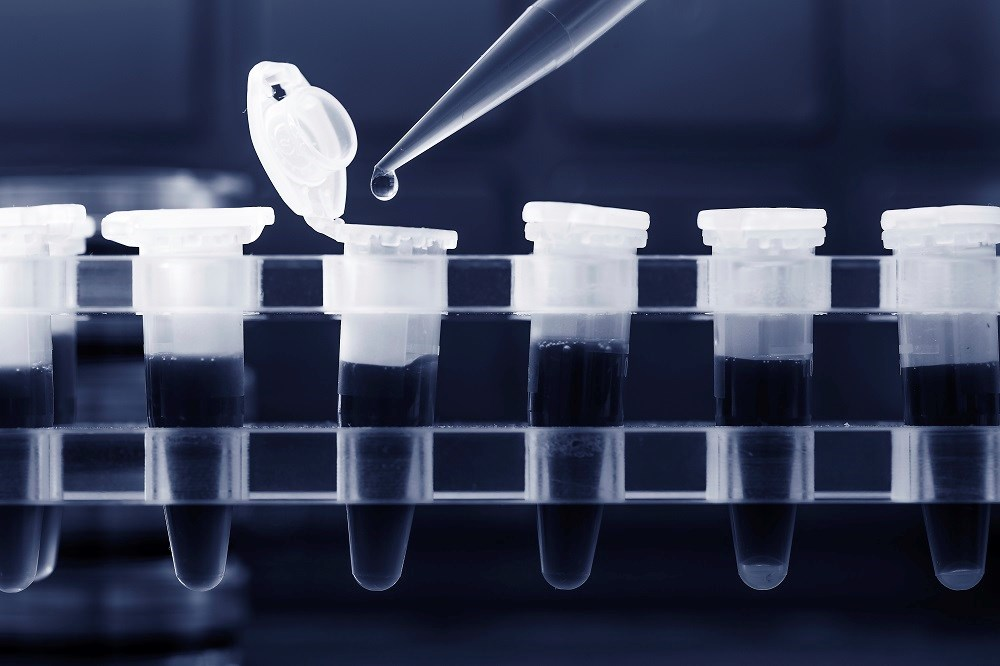 Simple Blood-Based PCR Test Can Predict Progression to Tuberculosis