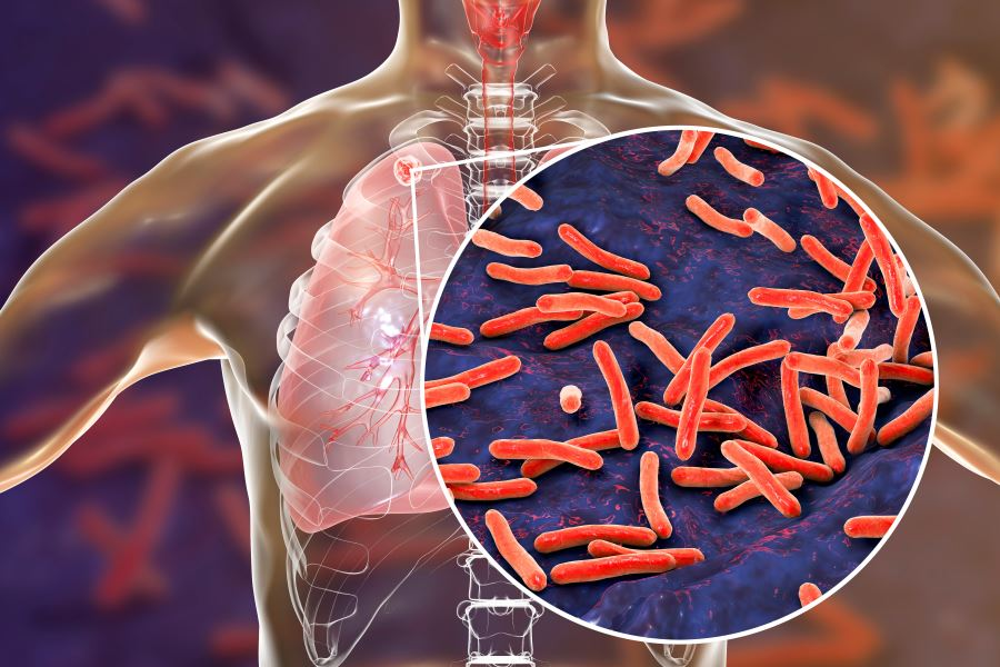 Could A New Universal Tuberculosis Regimen Help End The Tb Pandemic