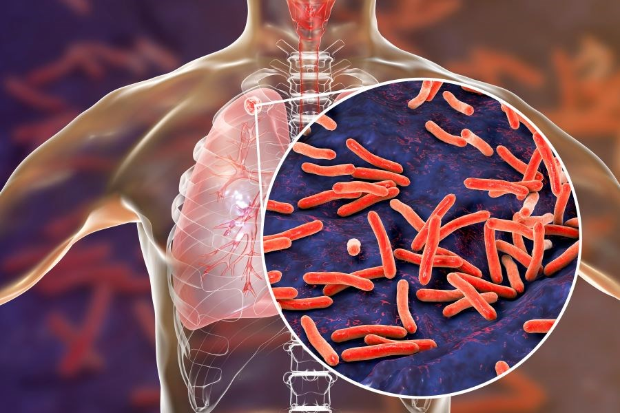 Could a New Universal Tuberculosis Regimen Help End the TB Pandemic?