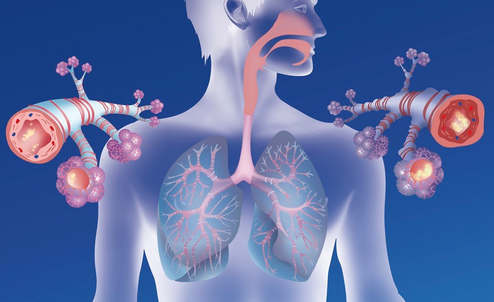 COPD Frequently Misdiagnosed, Undiagnosed in Individuals Infected With HIV