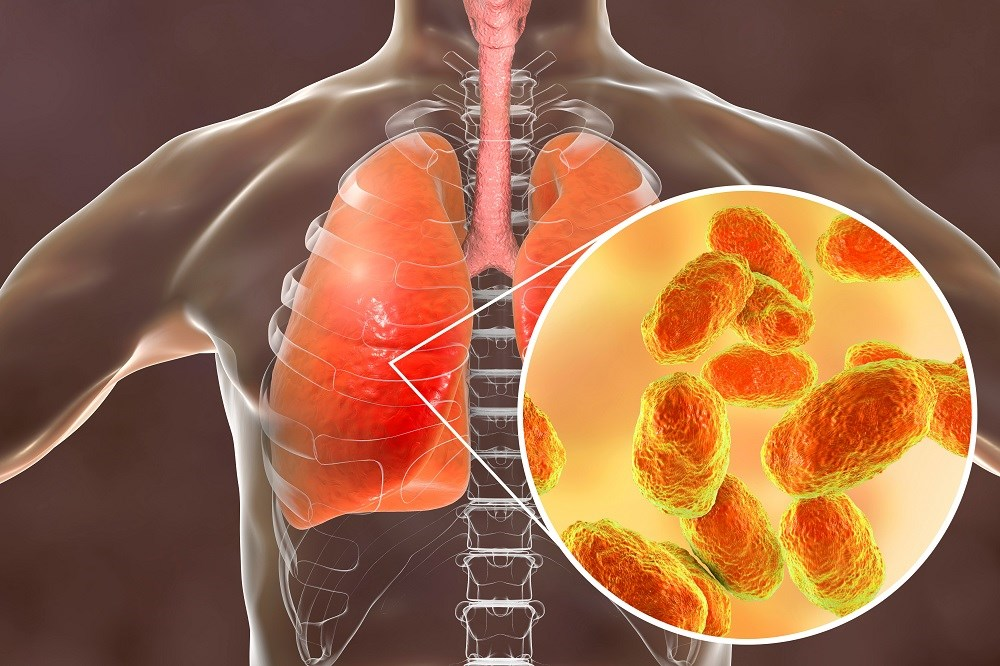 Absence of Alveolar Neutrophilia Predictive of Negative Bacterial Pneumonia