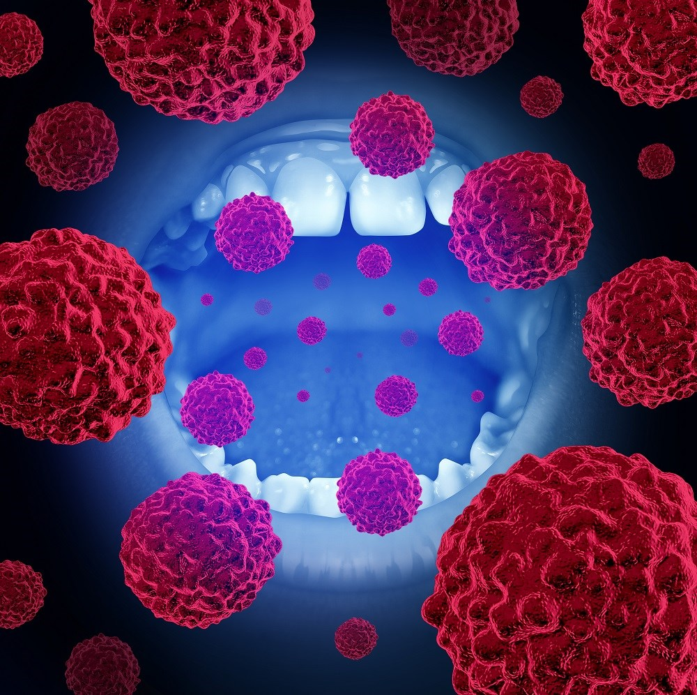 Older Adults Increasingly Have HPV+ Oropharyngeal Cancers