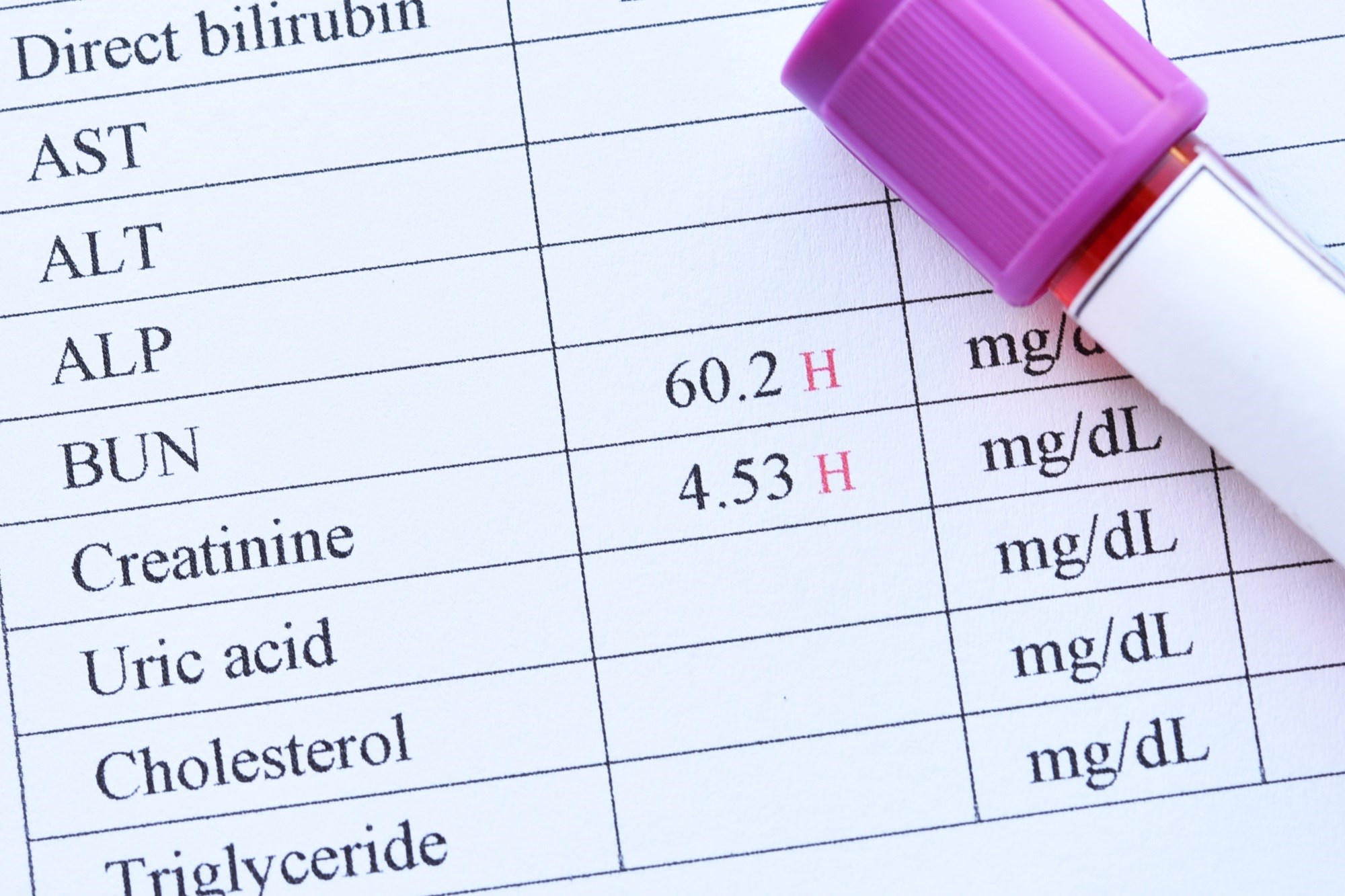 Re-Assessing Renal Dose Adjustments of Antibiotics: Expert Q&A